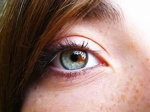 Eye - Sectoral Heterochromia by dcrispz on DeviantArt