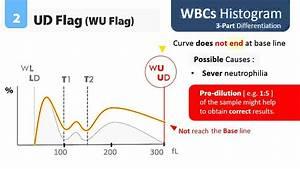 Wbc Cbc Diagram