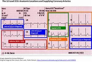 Back To Basics  Ecg Findings In Acute Myocardial