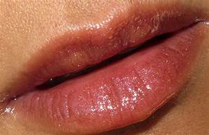 allergic reaction on lip - pictures, photos