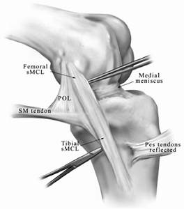 Ligaments Of The Knee - Knee  U0026 Sports