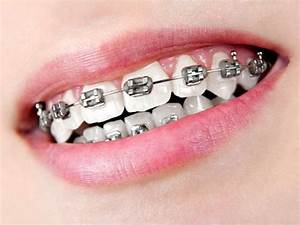 Silver Black Braces | Colors Braces | Pinterest | Colors ...