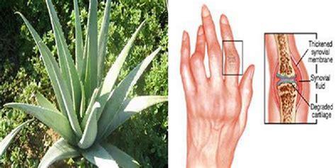 home remedies  arthritis  hand human  health