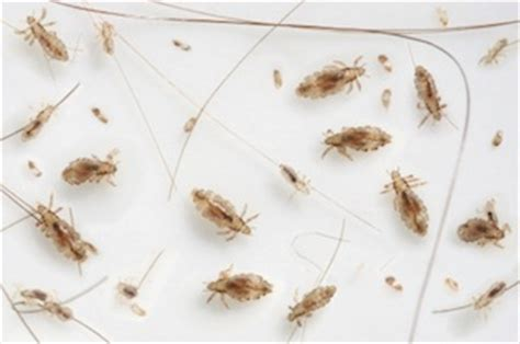 what color are nits when they are dead how to treat lice photo insecticides home remedies