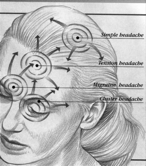 Headaches Stress Tension Headaches Relief For Headaches