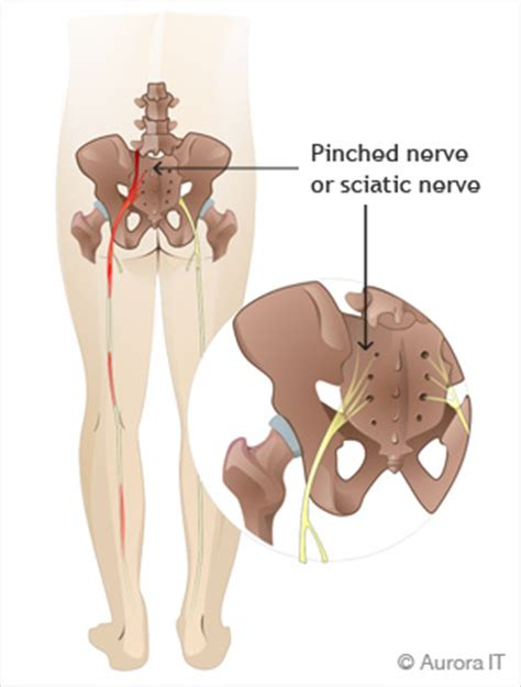 Nyc Sciatica  Manhattan Spine Expert  Back Pain Relief. 1 Bedroom Apartments San Diego Ca. Organic Latex Mattress Online Folder Printing. Physical Therapy Programs In Ct. Storage Facilities Louisville Ky. Publishing Companies In Washington Dc. Online Masters In School Counseling. Mediacom Marshalltown Iowa Bird Flu Treatment. Jackie Cooper Bmw Edmond Ok Asp Net School