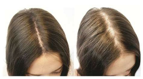 clive hair clinics aus hair loss treatment women