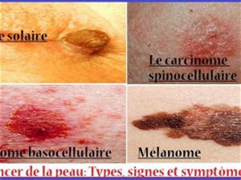 cancer peau photo cancer de la peau types signes et sympt 244 mes par karrouma