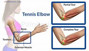 Causes & Symptoms of Elbow Joint Pain Elbow Injuries and Disorders
