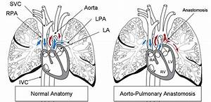 Schematic Of Normal Anatomy And The Aortopulmonary