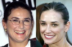 Celebrity teeth: before and after - Demi Moore's teeth ...