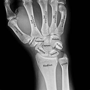 Carpal Bones  Definition  Location  Anatomy  Diagram