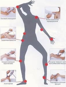 Лечение артроза в москве отзывы