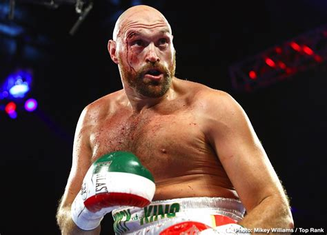 Tyson Fury to Deontay Wilder: 'Don't get injured against ...