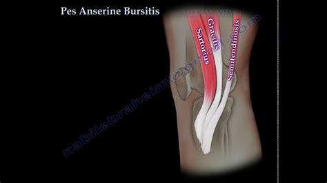 Pes Anserine Bursitis , knee pain - Everything You Need To