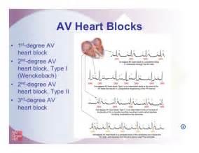 1st 2nd 3rd Degree Heart Block