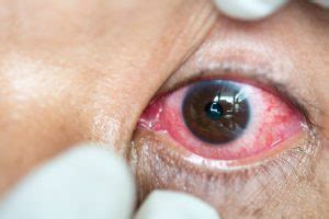 Herpes In The Eye Images Herpes Eyelid Www Pixshark Images Galleries With A