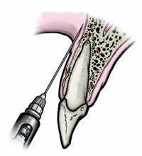 Анестезия при лечении зубов при диабете