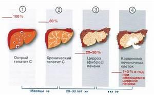 Псориаз какие препараты принимать для печени