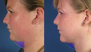 Update On Necklift With Platysmaplasty  U0026 Neck Liposuction