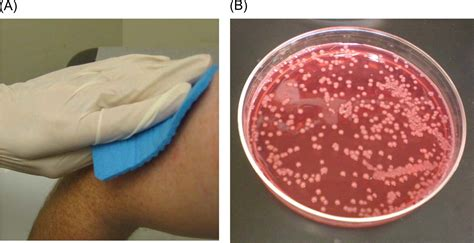 acinetobacter infection japan   case reports