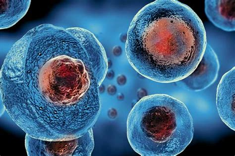 stem cell mutations linked  hydrocephalus