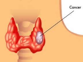 New Drug May Slow Recurrent Thyroid Cancer: Study – Best Health Plan Thyroid Cancer