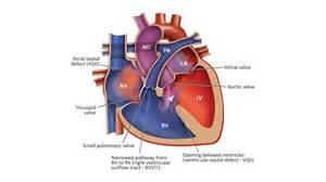 What Is Tetralogy of Fallot