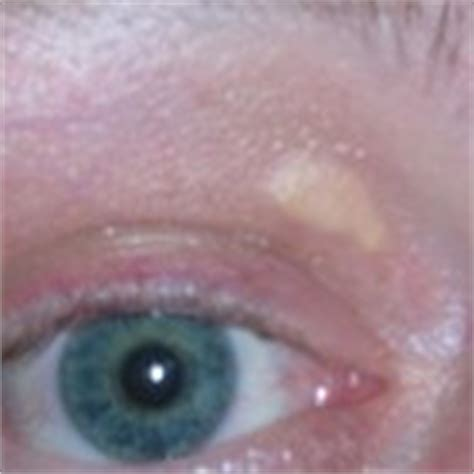 Gerstekorrel in oog