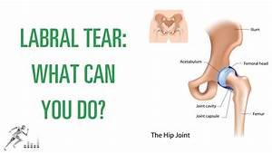 Labral Tear Of The Hip  What Is It  And How Can You Get