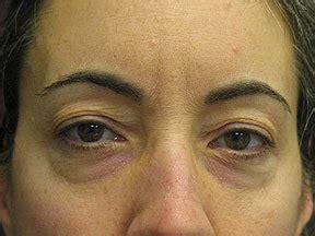 thermage anti aging skin treatment christine hamori
