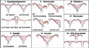 American Fertility Society Classification Of Uterine