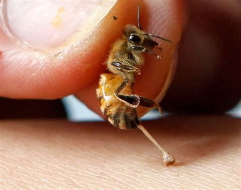 How Bee Sting Therapy Works