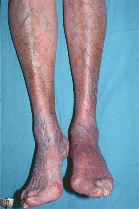 les symptômes tardifs stade de la maladie de lyme