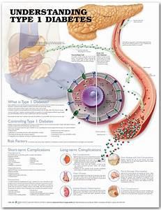 Type 1 Diabetes Chart