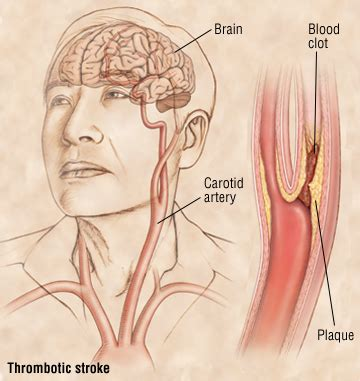 Thrombotic Stroke Guide Causes, Symptoms And Treatment. Airies Signs Of Stroke. Recognize Signs. Brown Signs Of Stroke. Hour Signs Of Stroke. Menus Signs Of Stroke. Driver Ed Sign Signs Of Stroke. Hormonal Imbalance Signs Of Stroke. February 15 Signs