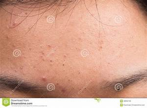 Pimple Blackheads On The Forehead Stock Photo - Image ...