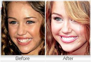 Miley Cyrus Teeth | newhairstylesformen2014.com