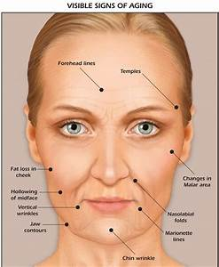 Using Fillers For Cheeks