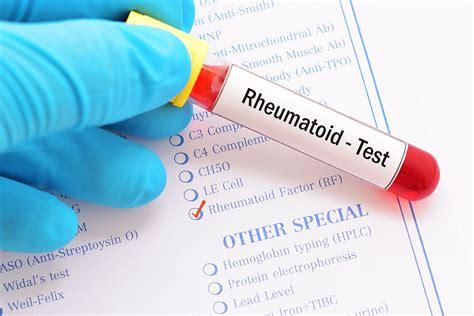 New Blood Test Said to Predict Onset of Arthritis ...