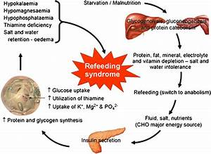 Pathogenesis And Features Of The Refeeding Syndrome