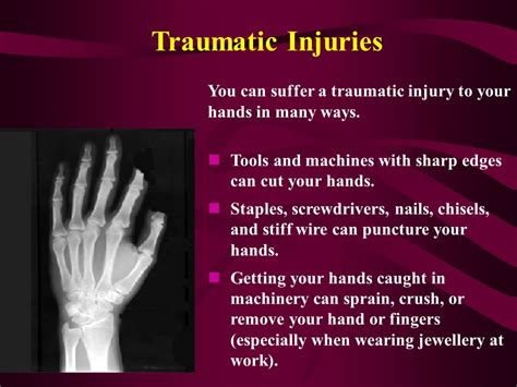 hand health  safety campaign