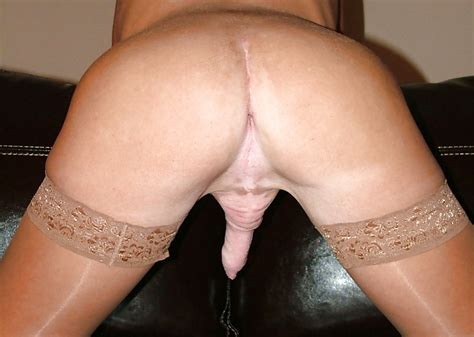 Castrated Trannies Castration Orchectomy 3 32 Pics