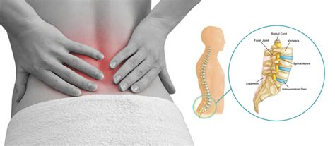 Treatment Options for Low Back Pain - Women Daily Magazine
