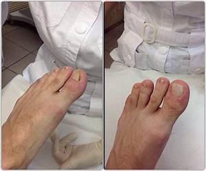 При грибке уменьшается ноготь