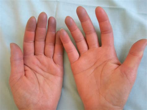 Raynaud Phenomenon Asphyxial Phase Doccheck Pictures