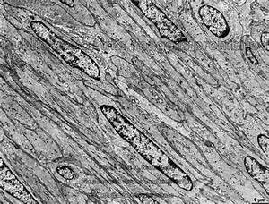 Smooth Muscle Dr Jastrow U0026 39 S Electron Microscopic Atlas