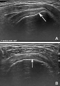 Ultrasound  A  Long
