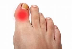 Артрит большого пальца ноги лекарства
