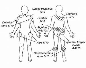 32 Body Diagram For Pain Assessment